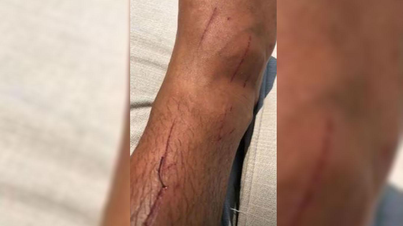 """Aarón Díaz mostró cómo quedó su pierna y sus fans se preocuparon por temor a una infección. """"No es nada grave"""", dijo el galán."""